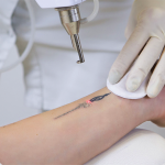 tatoeage verwijderen