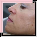 Pearl – huid vernieuwende laser